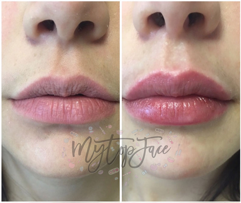 lips augmentation
