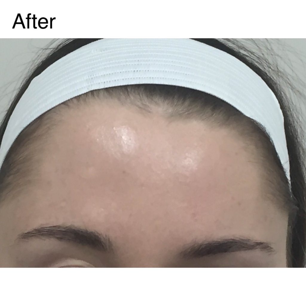 Pura Dermatology Dysport After Procedure