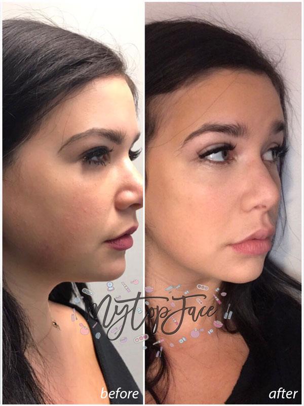 cheek and lips augmentation