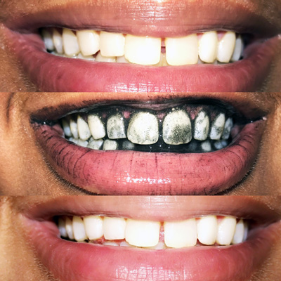 Sovanni Activated Coconut Charcoal Powder for Whiting Teeth