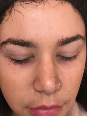 dazzling lash bar before procedure