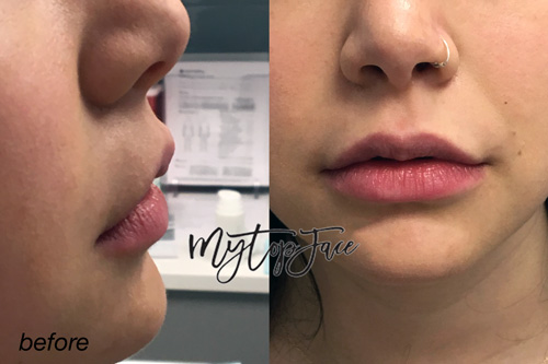 lip injections nyc