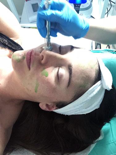 Oxygen Facial NYC